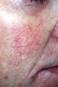 Couperose, Gefäß- erweiterungen (geplatzte Äderchen), Spinnennävus und Blutschwämmchen (Angiome)