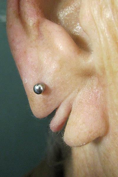 Ohrlochkorrektur, Ohrläppchenkorrektur, eingerissene / ausgerissene Ohrlöcher
