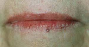 Angiom vor KTP- Lasertherapie