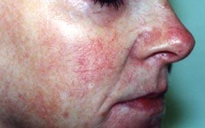 Couperose, Gefäß- erweiterungen (geplatzte Äderchen), Spinnennävus und Blutschwämmchen (Angiome), vor der Behandlung